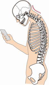 猫背でスマホをしている人の骨格