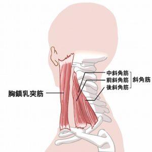 斜角筋、胸鎖乳突筋の図