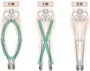 O脚とX脚と正常な足