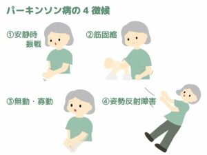 パーキンソン病の症状